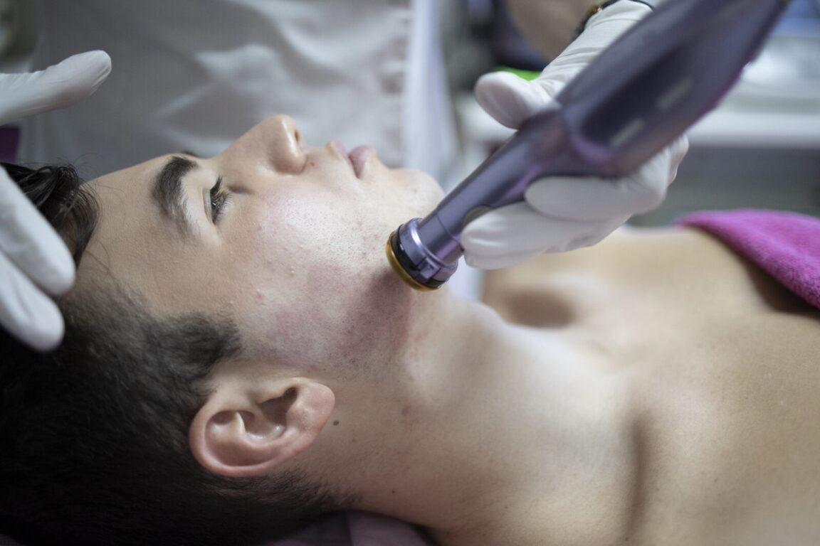 ατοπικές, ευαίσθητες επιδερμίδες & ροδόχρου νόσο - Plasma Therapy
